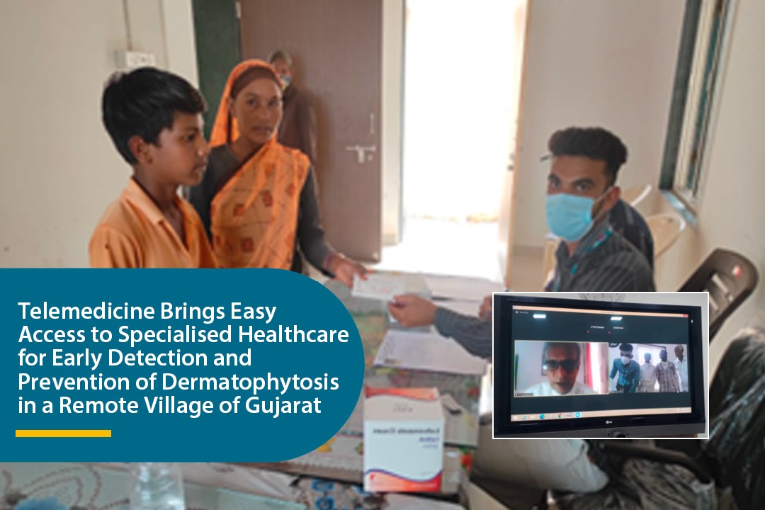 Telemedicine Brings Easy Access to Specialised Healthcare for Early Detection and Prevention of Dermatophytosis in a Remote Village of Gujarat